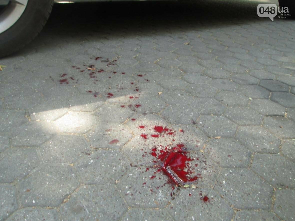 Смартфон дороже жизни: В Одессе грабители избили парня до крови (ФОТО), фото-1