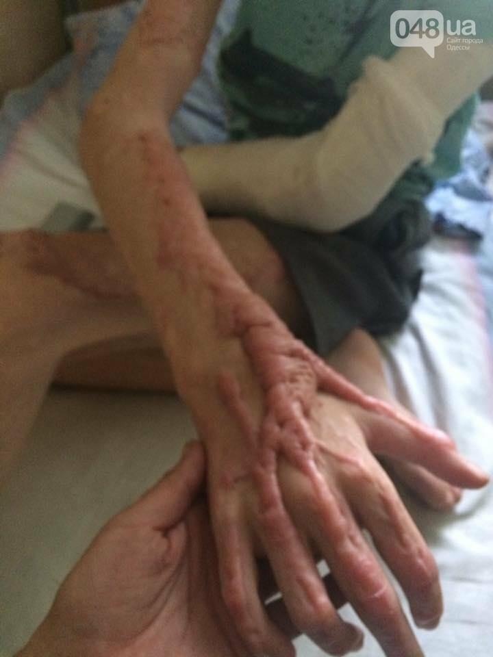 Смертельное селфи: в Одессе из-за глупости умер 17-летний подросток (ФОТО), фото-1