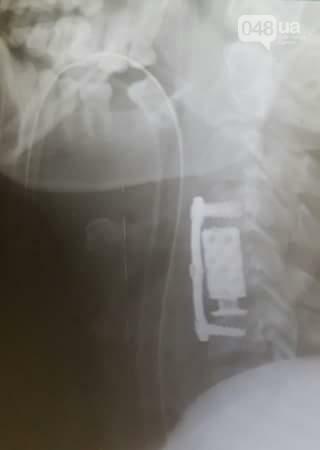 В Одессу доставили тяжело раненого бойца: нужна помощь (ФОТО), фото-2