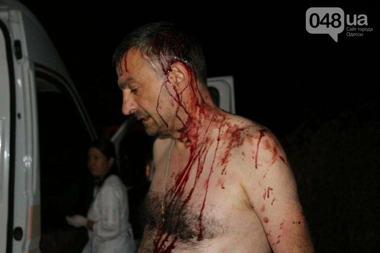 Под Одессой зверски избили журналиста (ФОТО, ВИДЕО), фото-1