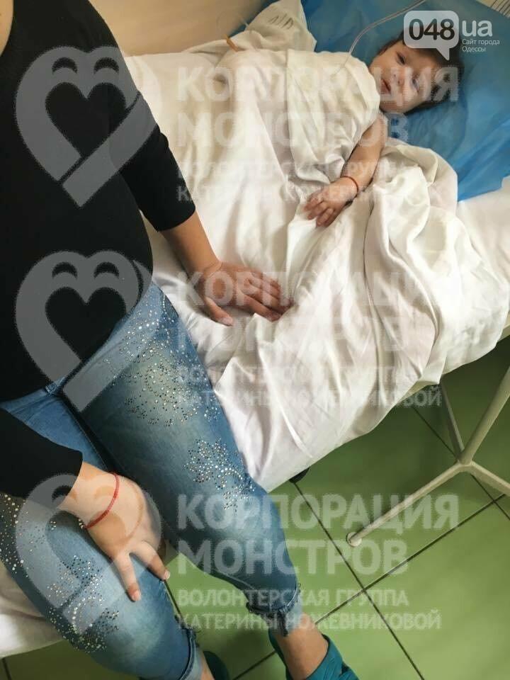 В одесскую больницу доставили малыша, которому дома ожоги засыпали содой (ФОТО), фото-2