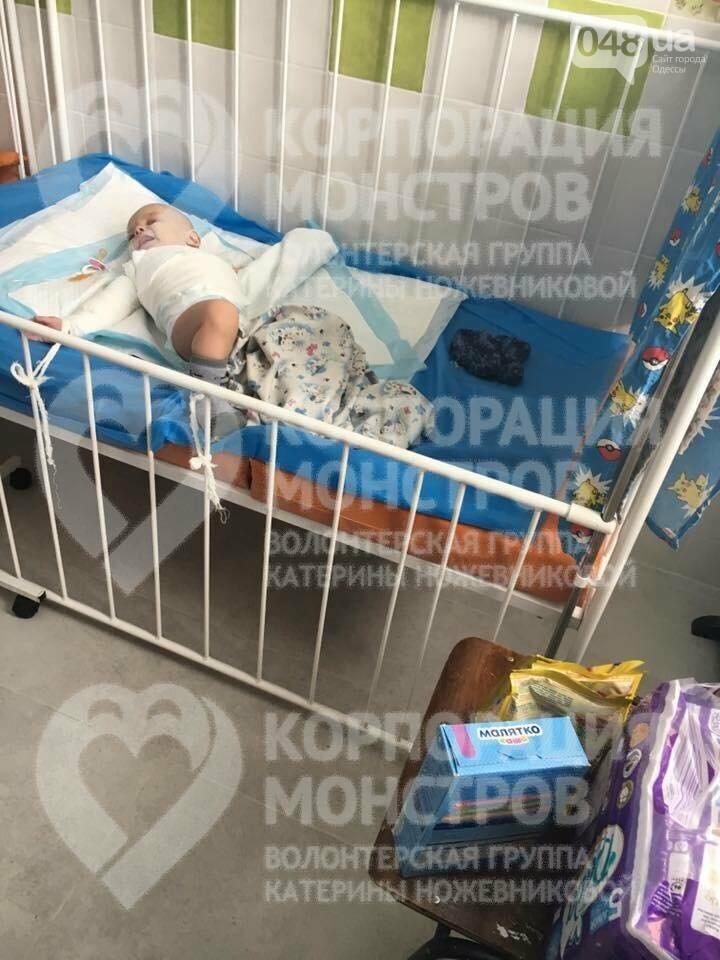 В одесскую больницу доставили малыша, которому дома ожоги засыпали содой (ФОТО), фото-1