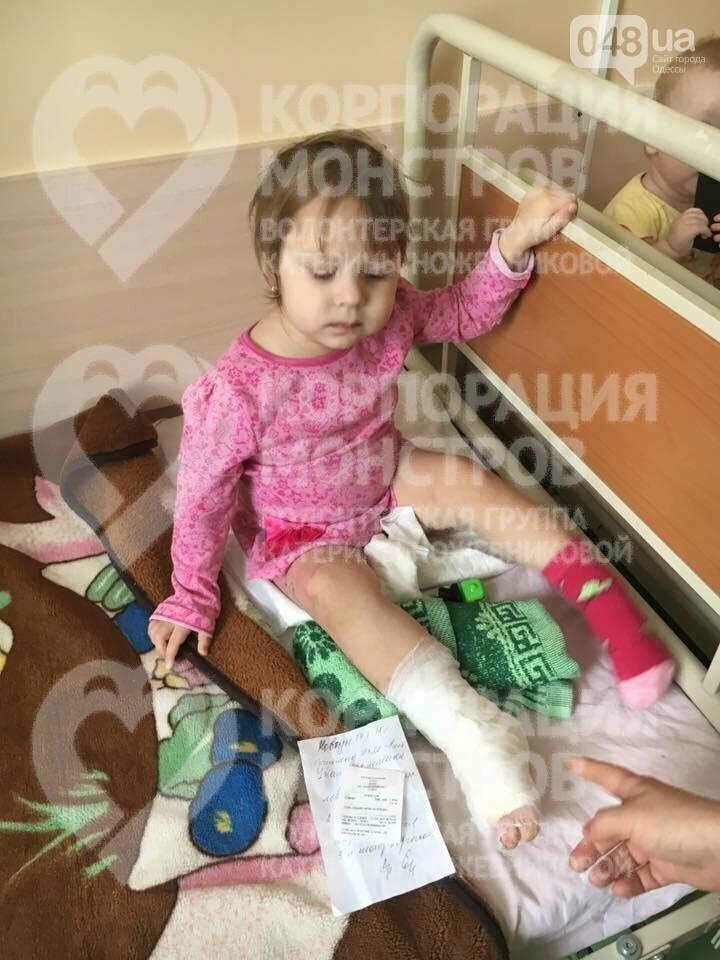 В одесскую больницу доставили малыша, которому дома ожоги засыпали содой (ФОТО), фото-4