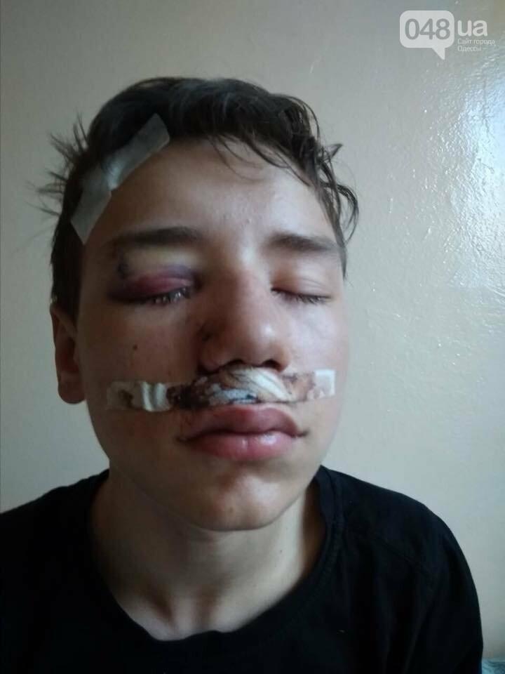 В одесском супермаркете мальчик врезался в стеклянную дверь: осколок впился в глаз, - ФОТО, фото-2