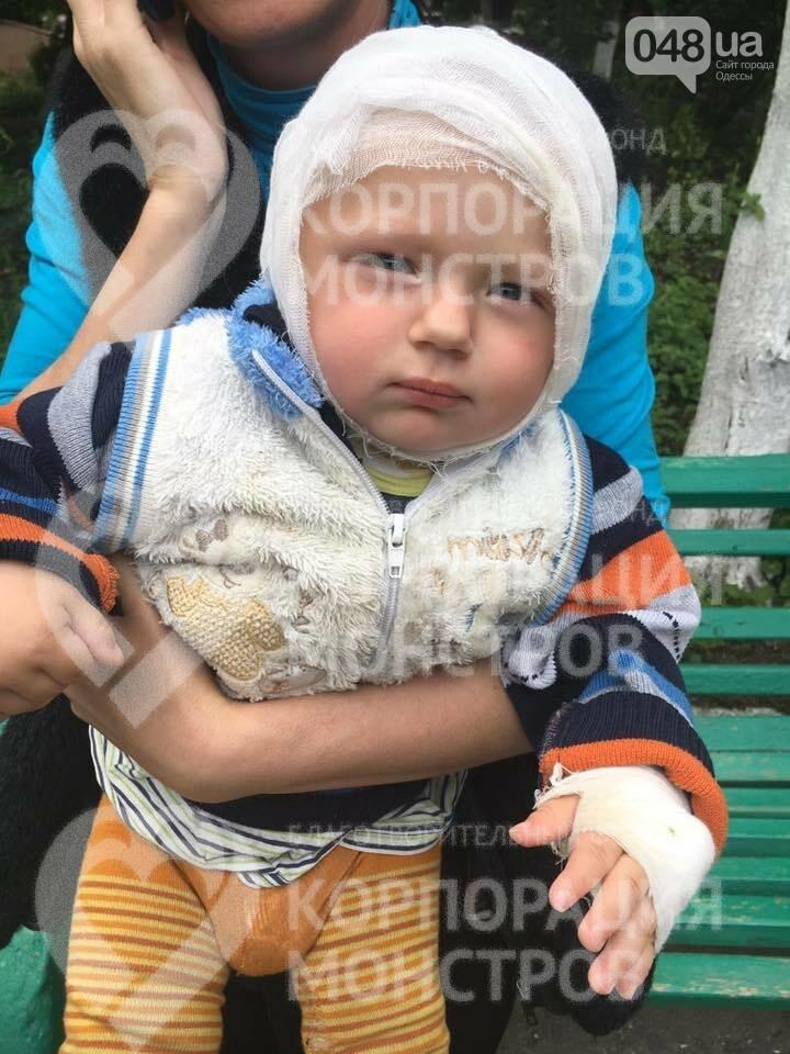В Одессу доставили малыша, который опрокинул на голову кипяток, - ФОТО, фото-2