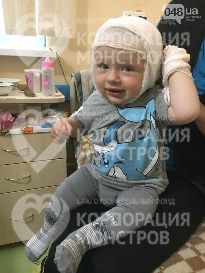 В Одессу доставили малыша, который опрокинул на голову кипяток, - ФОТО, фото-1