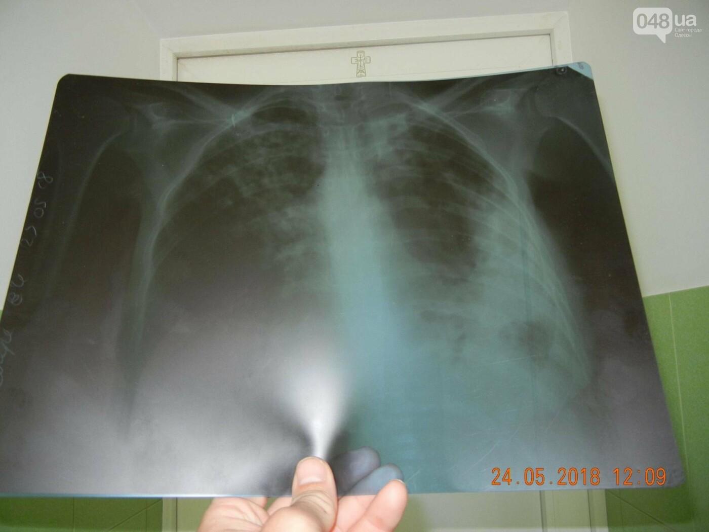 В одесской больнице женщина с последней стадией туберкулеза провела сутки в общей палате, - ФОТО, фото-2
