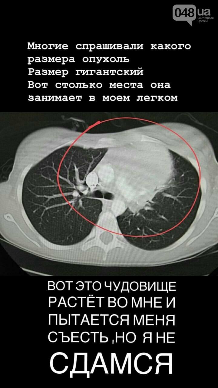 У одесской студентки обнаружили в легком опухоль огромного размера, - ФОТО, фото-1