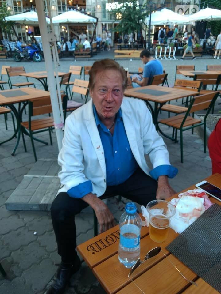 В Одессе американец-латинос избил друга Френка Синатры, - ФОТО, фото-1