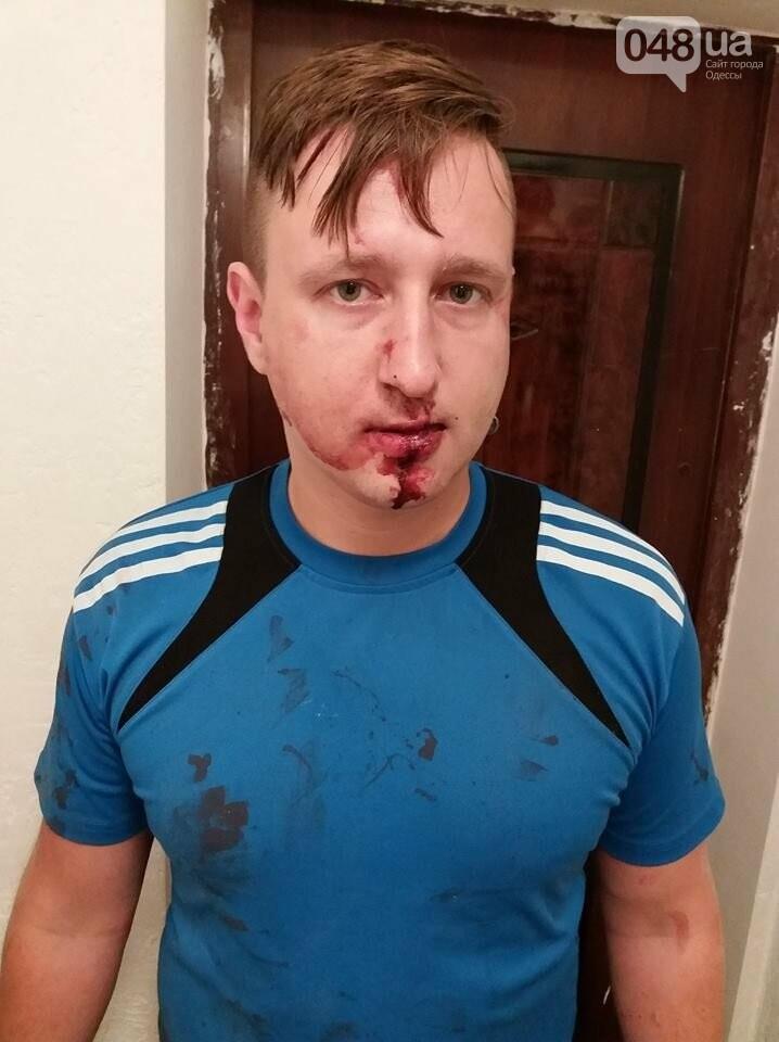 В Одессе очередное нападение на журналиста, - ФОТО, фото-1