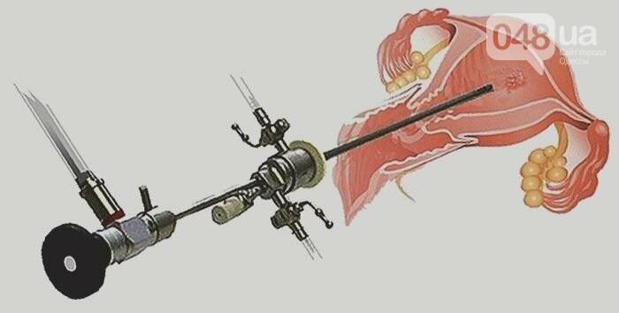 Гистероскопия - инновационная хирургия или дань моде?, фото-1