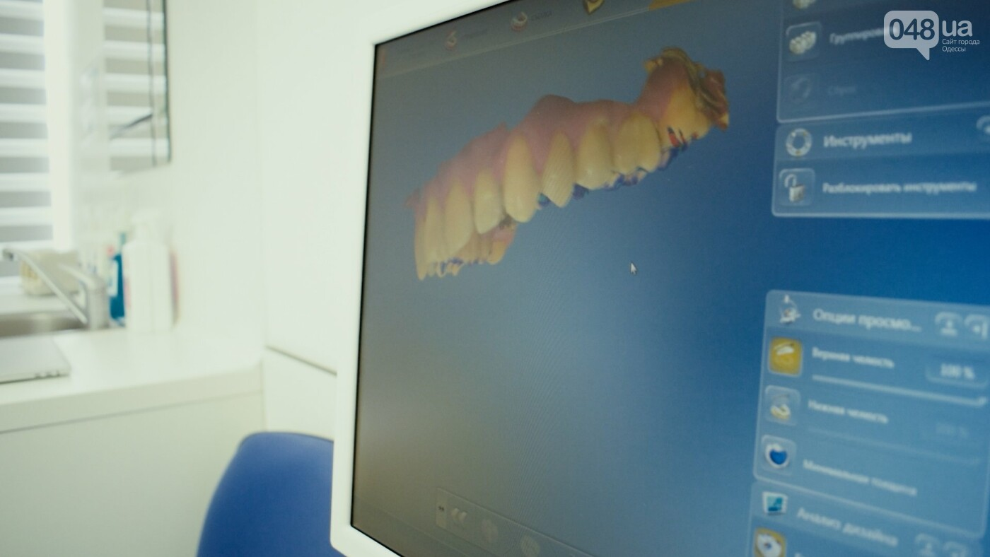 Медицинский центр Галси – гарантия безукоризненного сервиса в лечении зубов , фото-10