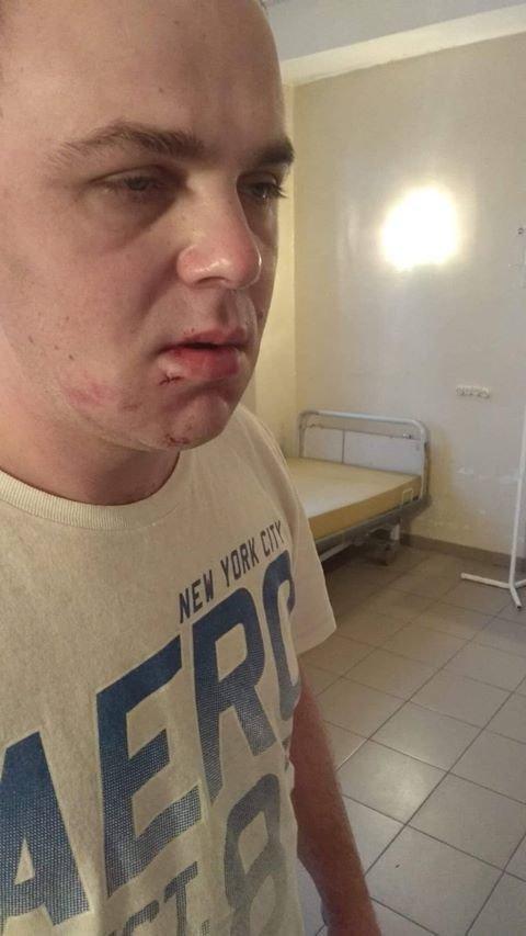 """""""Знаменитый"""" дебошир и автохам в новогоднюю ночь проломил голову одесситу, - ФОТО , фото-3"""