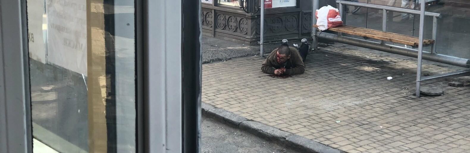 В Одессе на остановке возле Привоза лежит мужчина в луже крови, - ФОТО0
