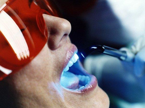 процедура отбеливания зубов у стоматолога